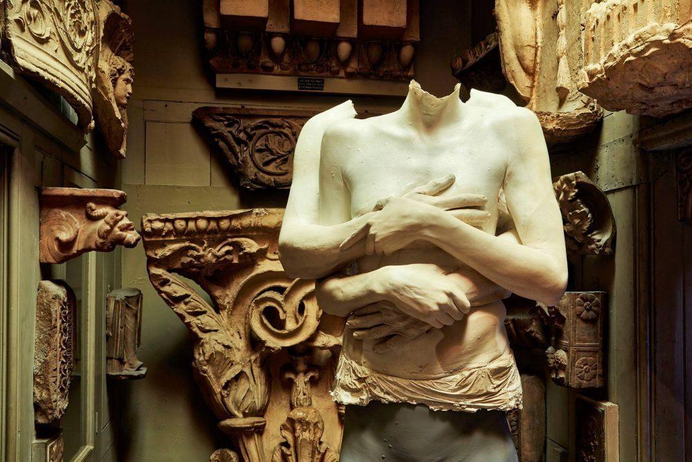 Marc Quinn |Sculpture of human body